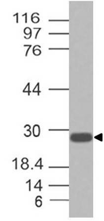 Monoclonal antibody to Troponin 1 (Clone: ABM5A65)