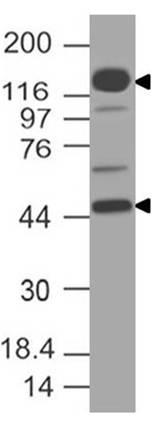 Monoclonal antibody to NUT (Clone: ABM56F7)