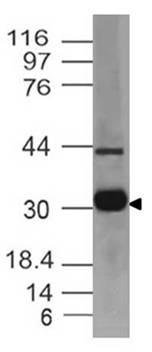 Monoclonal antibody to MHC classII (Clone: ABM56C9)