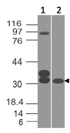 Monoclonal Antibody to Glutamate-Cysteine Ligase Regulatory Subunit /GCLM  (Clone: ABM2F9.1A7)