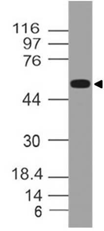 Monoclonal Antibody to Lck (Clone: ABM18H9)