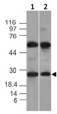 Monoclonal antibody to KCHIP1 (Clone: ABM20A1)