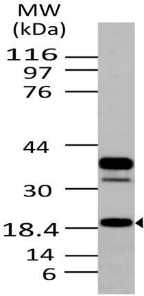 Monoclonal Antibody to AGR2 (Clone: ABM22E6)