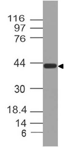 Monoclonal Antibody to Wnt5A (Clone: ABM2A39)