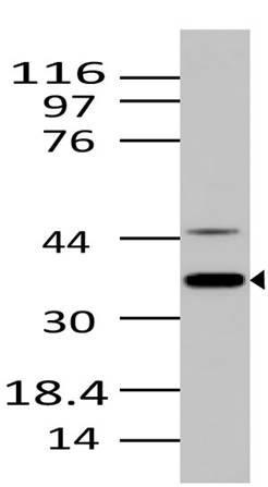 Monoclonal Antibody to NIFK (Clone: ABM29H6)
