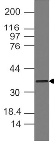 Monoclonal Antibody to MyoD (clone : ABM30F6)