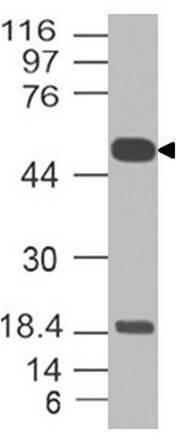 Monoclonal Antibody to SOX10 (Clone: ABM42D7)