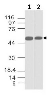 Monoclonal Antibody to SOX10 (Clone: ABM4E24)