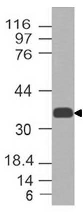 Monoclonal antibody to CCR2 (Clone: ABM58F2)