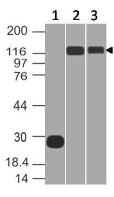 Anti-ACE2 Monoclonal antibody (Clone: ABM1H3.1G11)