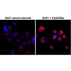 Recombinant Rabbit Monoclonal Antibody  to Phosphothreonine (Clone: RM102)(Discontinued)
