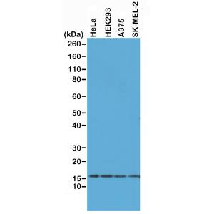 Recombinant Rabbit Monoclonal Antibody  to Histone H2AX (Clone: RM214)
