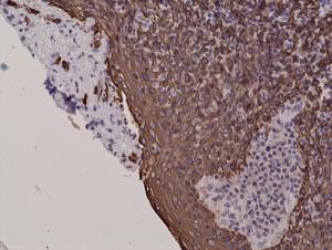 Recombinant Rabbit Monoclonal Antibody  to CK5 (Cytokeratin 5) (Clone: RM226)(Discontinued)
