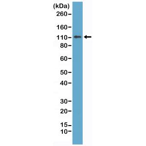 Recombinant Rabbit Monoclonal Antibody  to E-Cadherin, CDH1, Cadherin-1 (Clone: RM244)