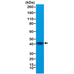 Recombinant Rabbit Monoclonal Antibody  to Alpha Cardiac Actin (ACTC1) (Clone: RM257)(Discontinued)