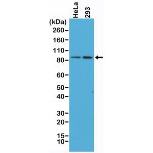 Recombinant Rabbit Monoclonal Antibody  to Beta-Catenin 1 (CTNNB1) (Clone: RM276)