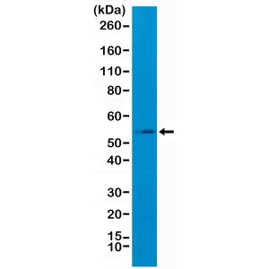 Recombinant Rabbit Monoclonal Antibody  to GFAP (C-Terminal) (Clone: RM282)(Discontinued)