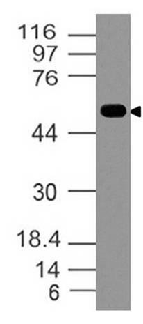 Polyclonal Antibody to Wnt5a