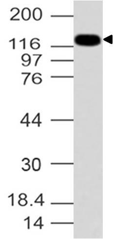 Polyclonal Antibody to Formin-like protein 2
