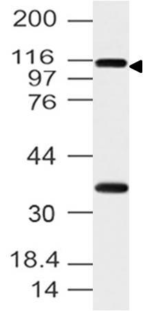 Polyclonal Antibody to FMNL3