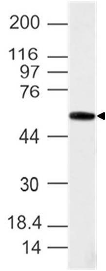 Polyclonal Antibody to Brachyury