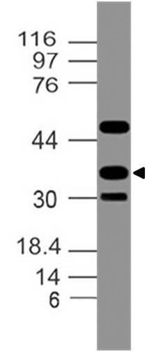 Polyclonal Antibody to CDX3