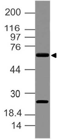 Polyclonal Antibody to Delta like 3