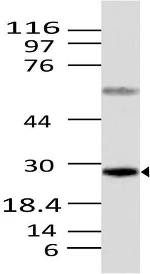 Polyclonal Antibody to Caspase-12