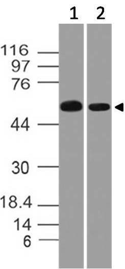 Polyclonal Antibody to Catalase
