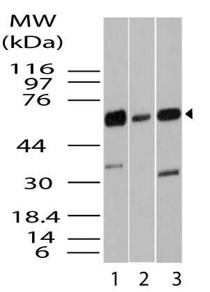 Fig-1: Western blot analysis of KLF4/GKLF. Anti- KLF4/GKLF antibody (11-12004) was used at 2 µg/ml on 1) HCT-116, 2) Hela and 3) A549 lysates.