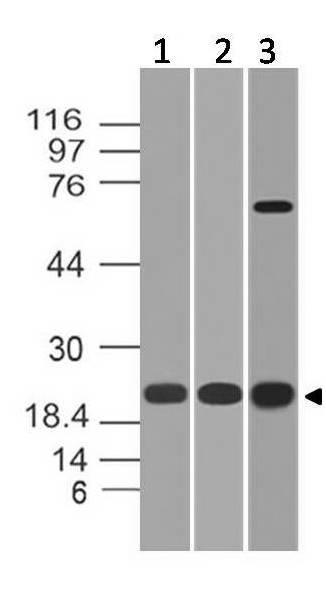 Polyclonal antibody to Cbx5