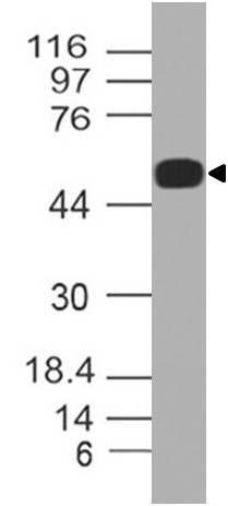 Polyclonal Antibody to SPZ1/TSP1