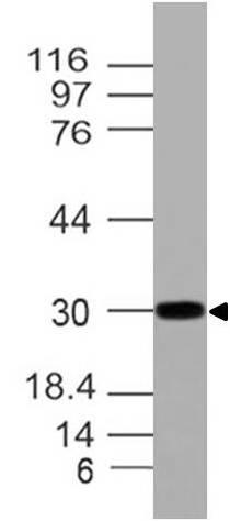 Polyclonal Antibody to HOXA9