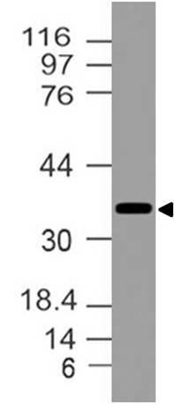 Polyclonal Antibody to NKX2-5