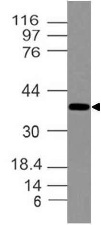 DLX3/distal-less homeobox 3