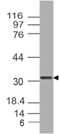 Polyclonal Antibody to Otx2