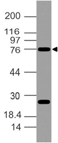 Polyclonal Antibody to OCT1