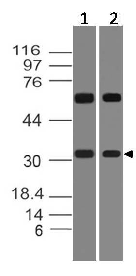 Polyclonal Antibody to HoxD8
