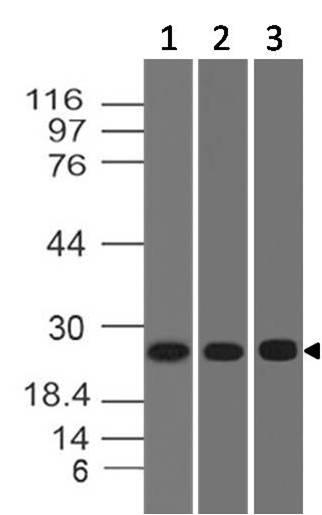 Polyclonal Antibody to ERAS