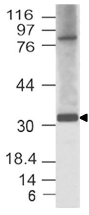 Polyclonal Antibody to HEY1