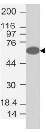 Polyclonal Antibody to FOXC1