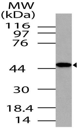 Polyclonal Antibody to TRBP