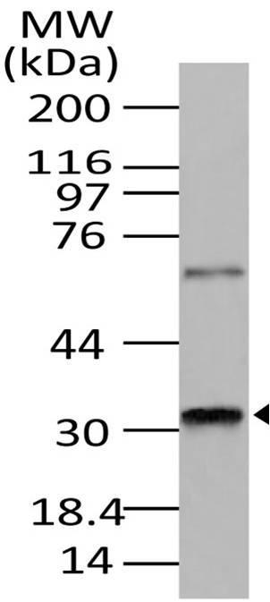 Polyclonal Antibody to RAX