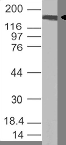 Polyclonal Antibody to SARS-CoV-2 Spike Protein