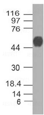 Polyclonal Antibody to SARS-CoV-2 nucleocapsid Protein Biotin Conjugated