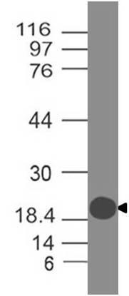 Polyclonal ACE2 antibody