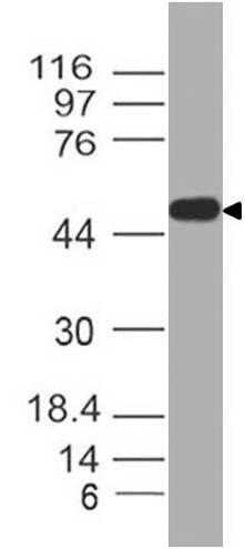 SARS-CoV2 N-Term Nucleocapsid Antibody