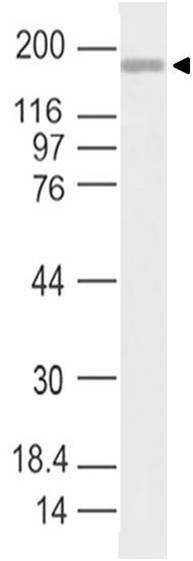 SARS-CoV-2 Spike S1 Antibody