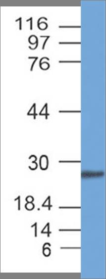 SARS-CoV2 Spike RBD Antibody