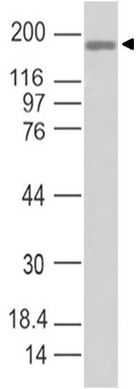 COVID-19/SARS-CoV-2 Spike S1 Antibody